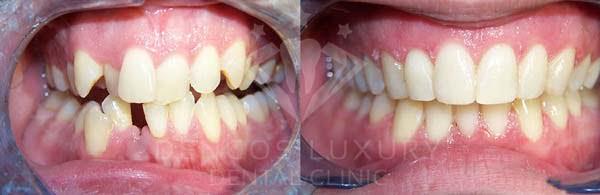 hình ảnh trước sau khi niềng răng