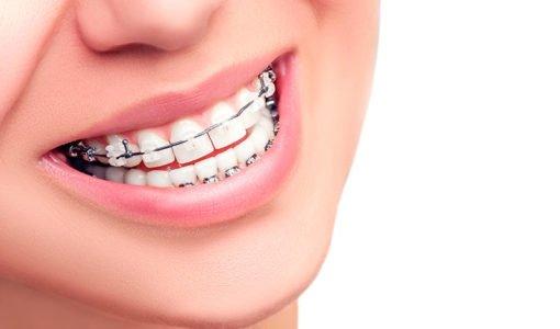 niềng răng ở đâu tốt nhất hà nội