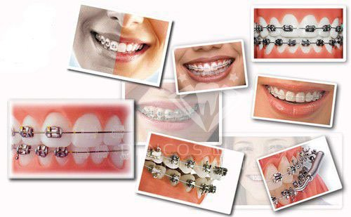 niềng răng ở đâu tốt nhất hà nội 4
