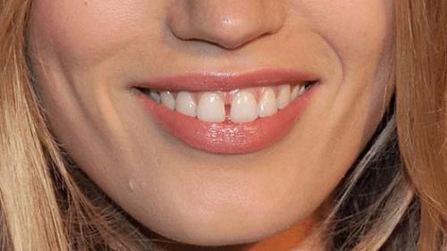 Niềng răng thưa giá bao nhiêu?