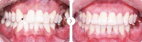 niềng răng trả góp - kết quả trước sau