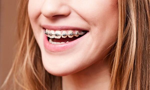 niềng răng trước và sau 8