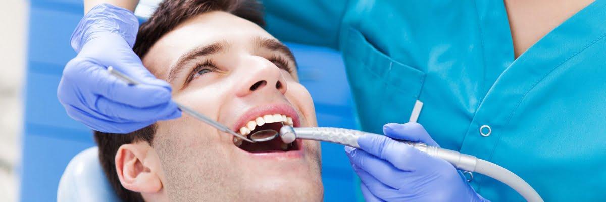 quy trình niềng răng 5