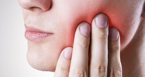 răng khôn mọc lệch ra má 1