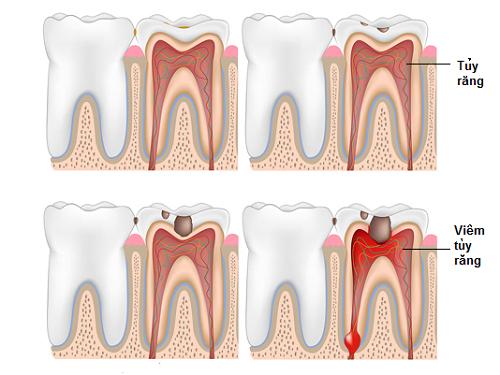 điều trị viêm tủy răng 1
