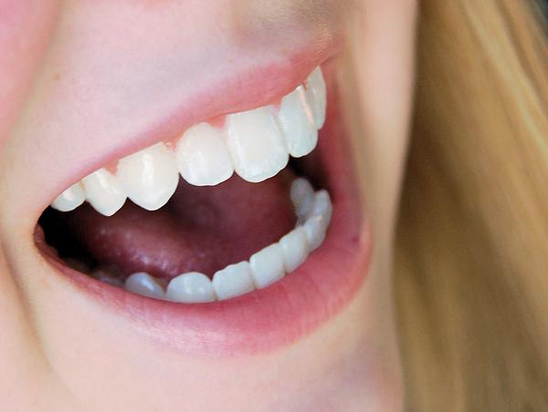 bọc răng sứ cả hàm có đẹp không