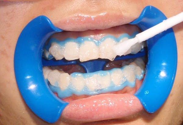 Tẩy trắng răng bằng hydro peroxid tại nha khoa
