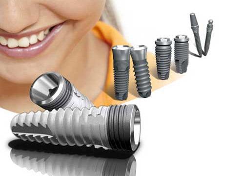 rang-implant-co-bi-dao-thai-khong-1