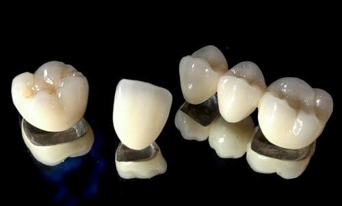 bọc răng sứ bằng chất liệu như nào là tốt