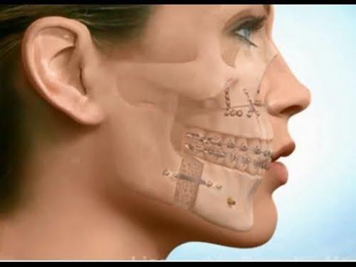 tác hại của niềng răng 2