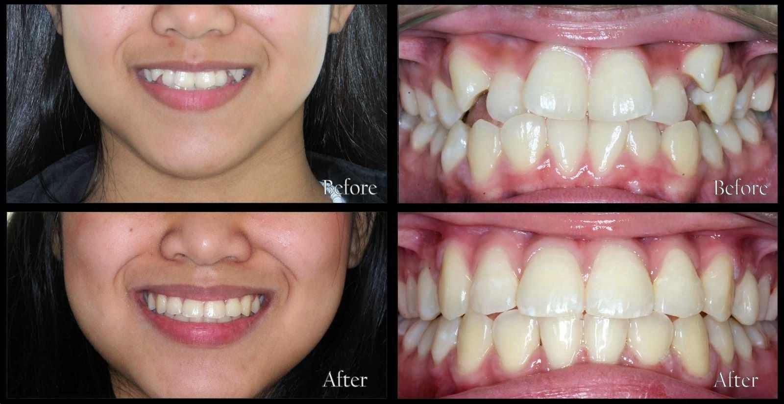 tác hại của niềng răng 3