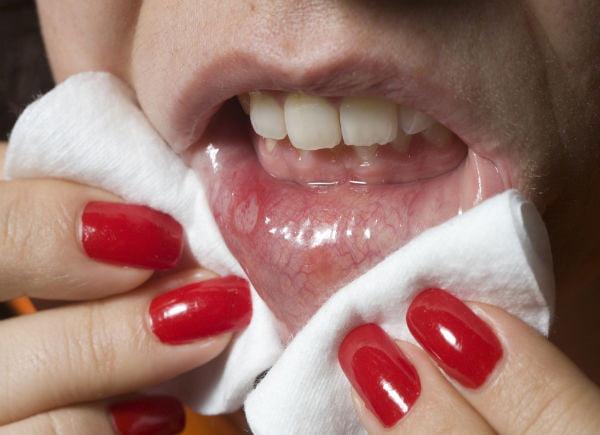 Nguyên nhân bị nhiệt miệng thường xuyên & cách chữa trị triệt để 2