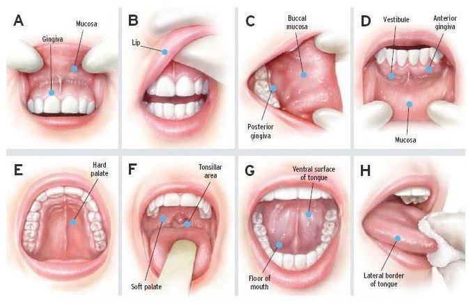 """Nhiệt miệng là gì - Nguyên nhân & cách chữa hiệu quả """"CẤP TỐC"""" 2"""