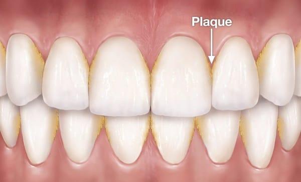 hình ảnh mô phỏng cao răng và mảng bám trước khi lấy cao răng ở nhà