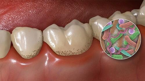cách lấy cao răng hiệu quả nhất giúp loại bỏ các bị khuẩn răng miệng