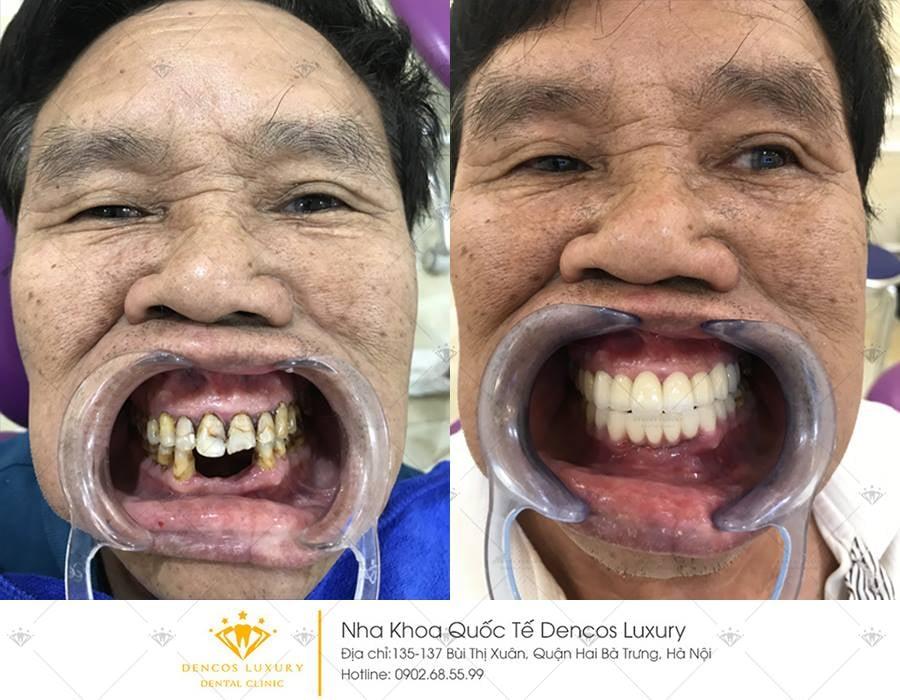 khách hàng trồng răng implamt