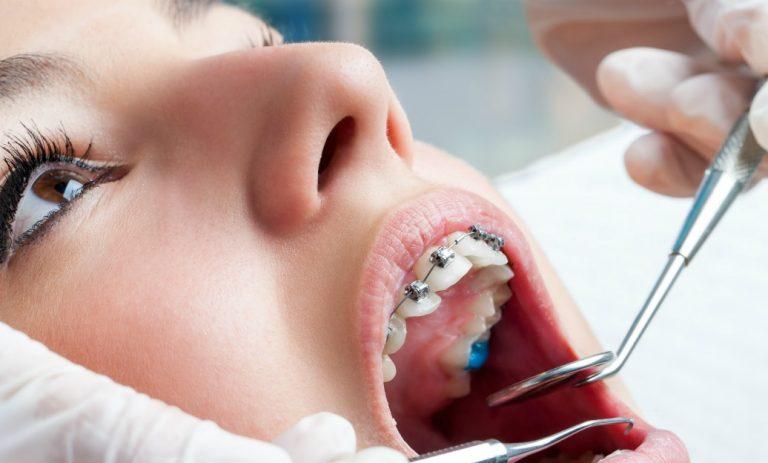 niềng răng mât bao lâu 3