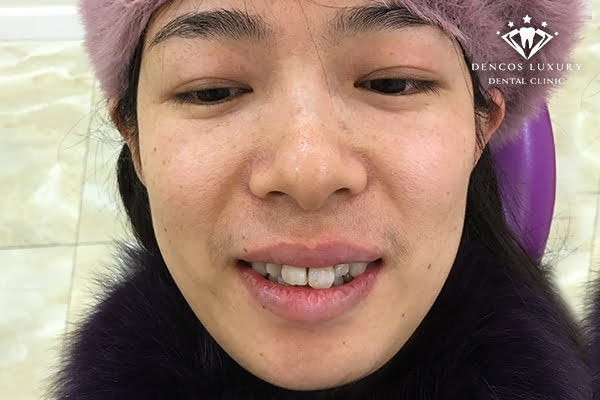 Hình ảnh phục hình trước - sau bọc răng sứ thẩm mỹ