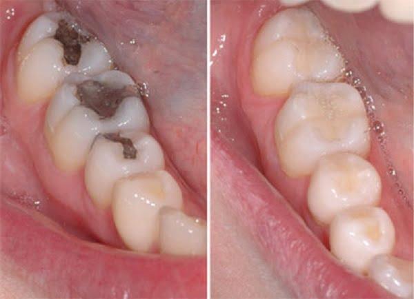 Bọc răng sứ cho răng sâu 2