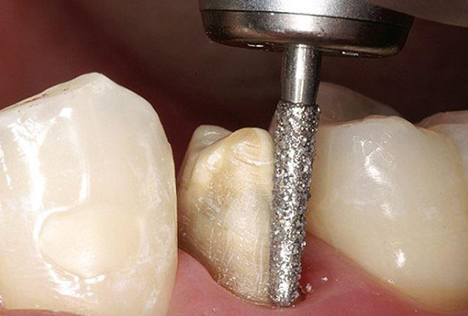 Bọc răng sứ không cần mài răng 1