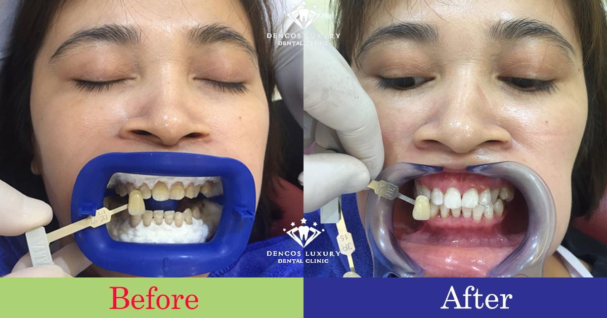 Giá tẩy trắng răng 2