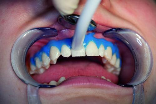 Giá tẩy trắng răng 1