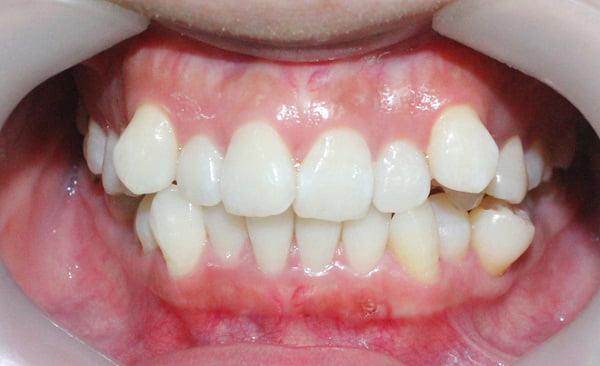 Niềng răng vô hình 1