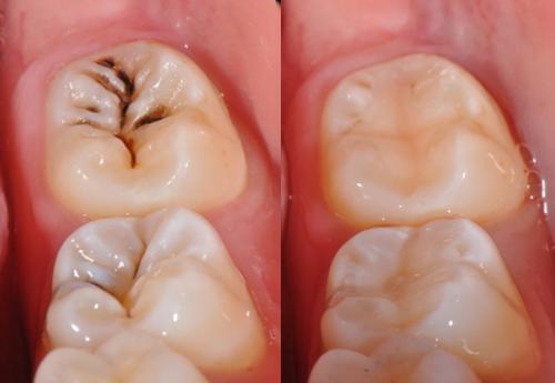 Sâu răng có lây không 4