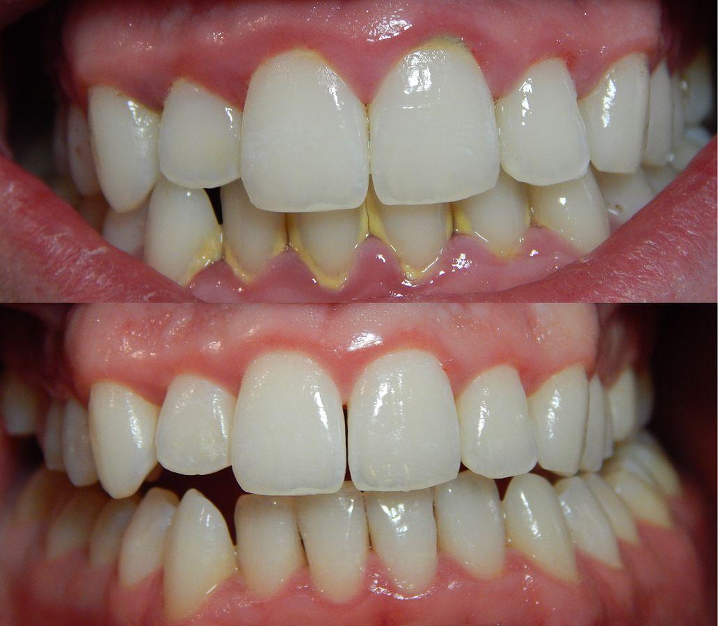 hình ảnh trước và sau khi dùng cách lấy cao răng tại nhà