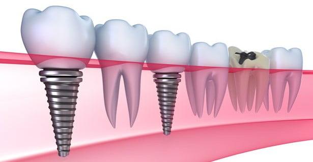 lý do bạn nên cấy ghép implant là gì