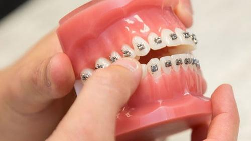 niềng răng giá