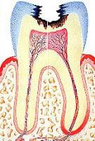 điều trị viêm tủy răng 3