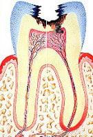 điều trị viêm tủy răng 4