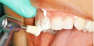 khám răng định kỳ 3