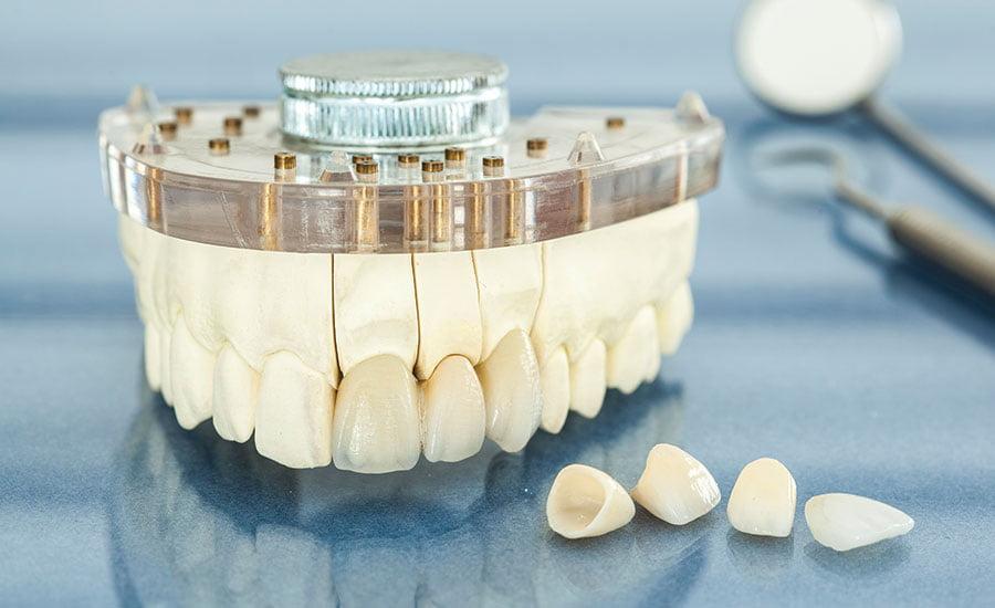 mô hình răng sứ