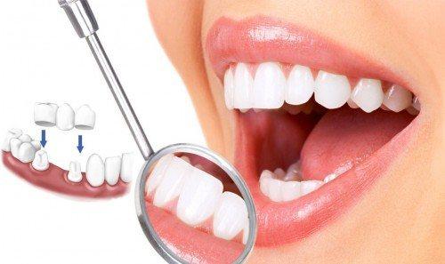 những lưu ý khi bọc răng sứ
