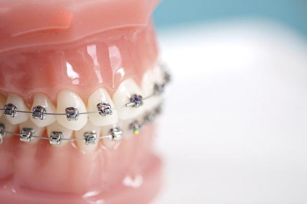 niềng răng mất bao lâu 4
