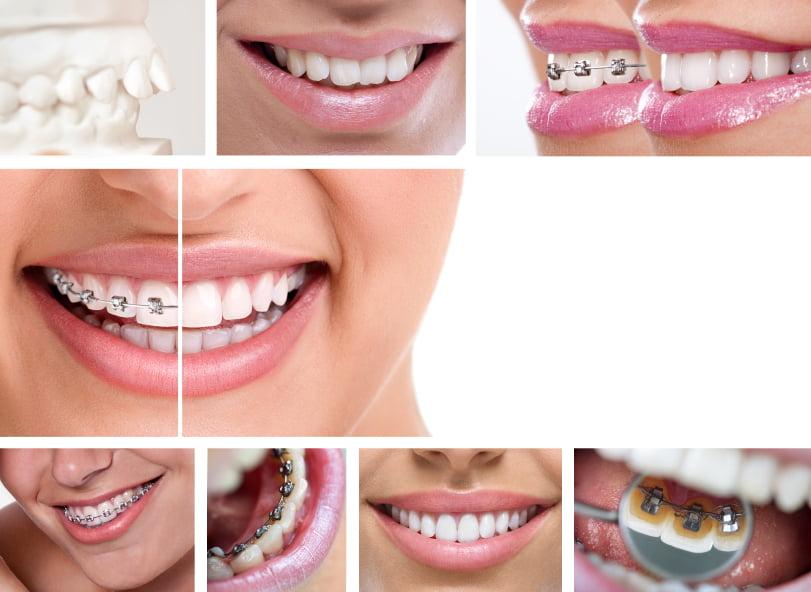 niềng răng mất bao lâu 6