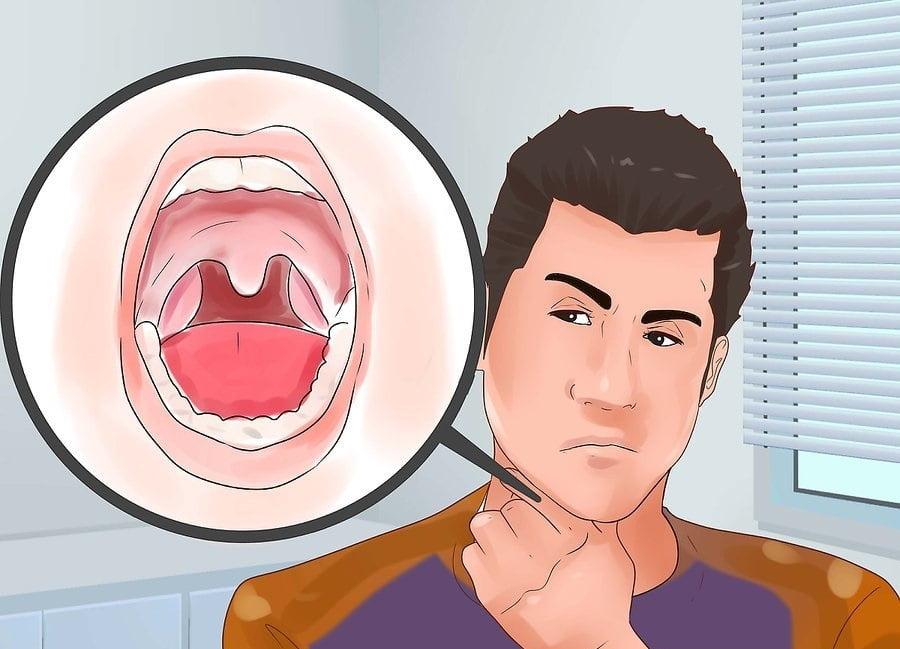 Điều trị amidan - cách trị hôi miệng tận gốc