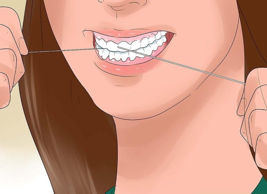 Sử dụng chỉ nha khoa giúp chữa bệnh hôi miệng tận gốc