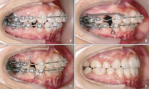Niềng răng mắc cài kim loại 4