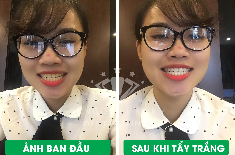 Lại Thị Ngân trước và sau khi tẩy trắng răng