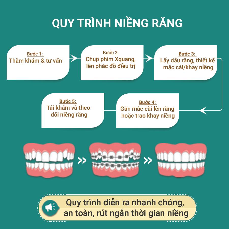 quy trình niềng răng bằng mắc cài kim loại