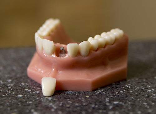 rang-implant-co-bi-dao-thai-khong