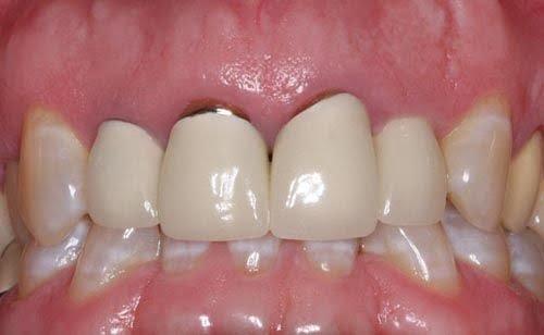 tháo răng sứ có đau không