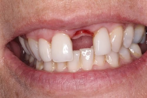 cấy ghép răng implant