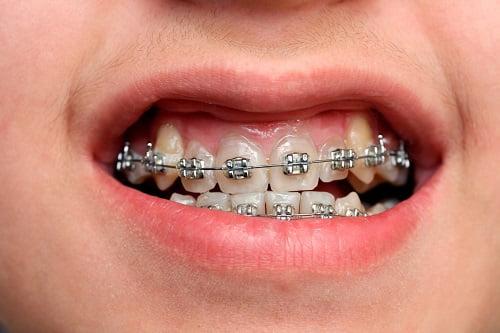 Niềng răng mắc cài kim loại giá bao nhiêu?