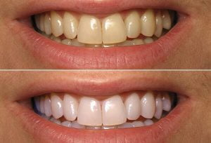 Răng ố vàng sẽ tẩy trắng được hiệu quả nhất