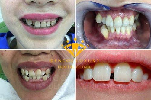 Trường hợp áp dụng bọc răng sứ thẩm mỹ