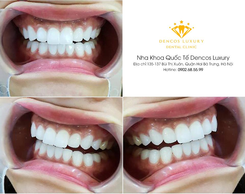 Chụp răng sứ mang lại nhiều lợi ích cho người dùng